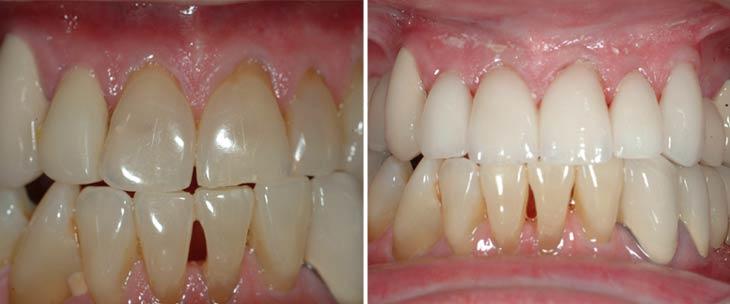 BJ - Avery & Meadows Dental Partnership