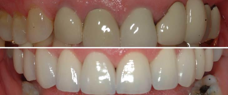 fk - Avery & Meadows Dental Partnership