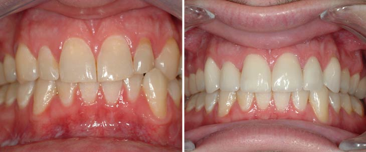 mt - Avery & Meadows Dental Partnership