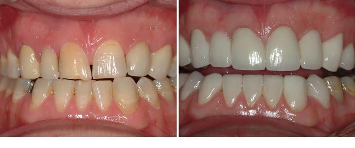 pd - Avery & Meadows Dental Partnership