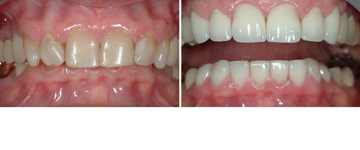 rp - Avery & Meadows Dental Partnership
