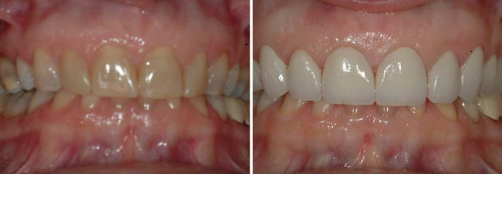 before and after dental photos - Avery & Meadows Dental Partnership