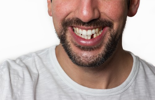 man with missing tooth - Avery & Meadows Dental Partnership