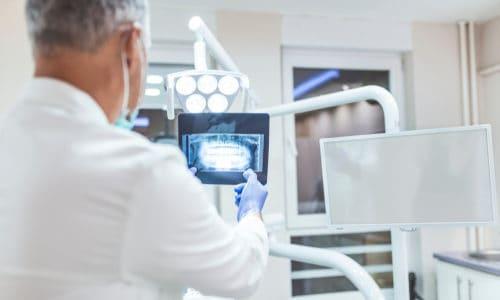 dentist examines x-ray